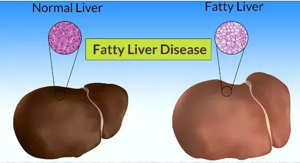 Physicians weight loss centers fairfax