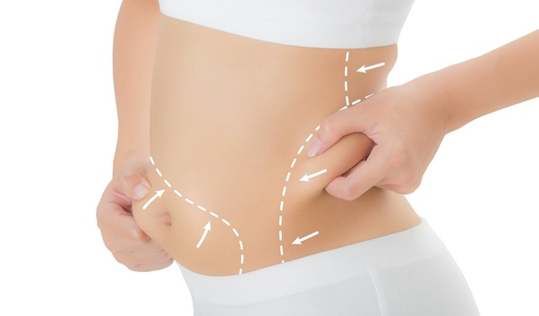 Where can I find the best clinic for the Coolsculpting