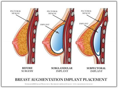 how does breast enlargement work