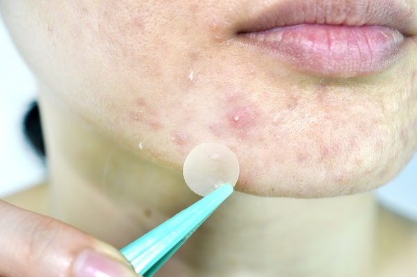 What's the best way of getting rid of whiteheads on the nose
