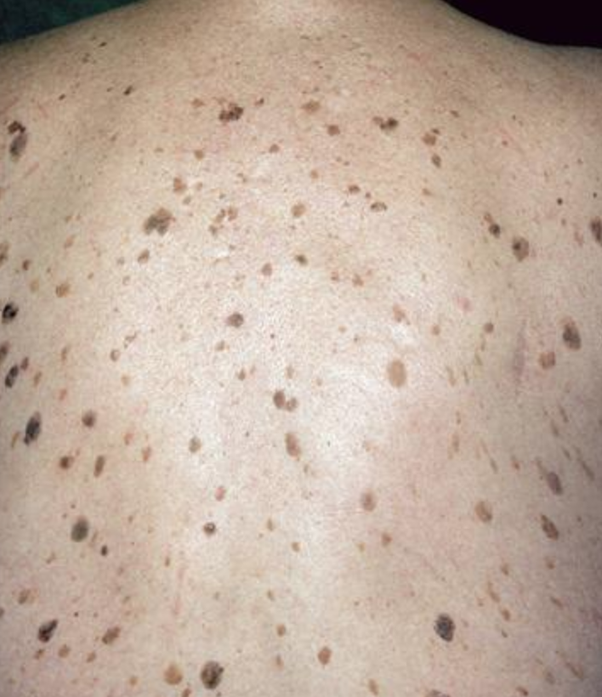 How To Get Rid Of Black Spots On My Back Quora