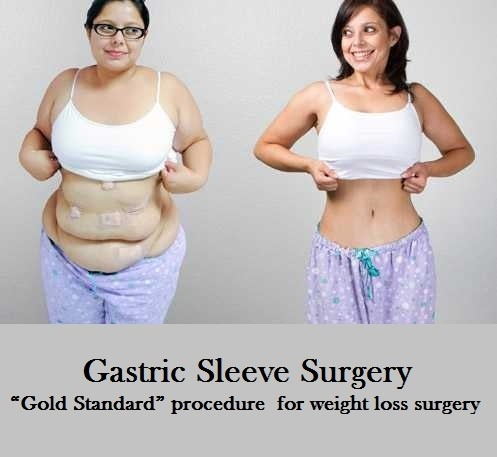 What Are The Benefits Of Gastric Sleeve Surgery Quora