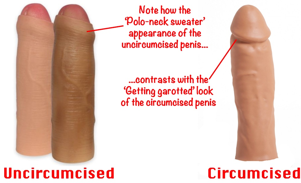 What is the difference between a circumcised male