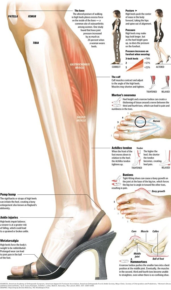 Is It Safe To Wear Heels With A Knee Sprain Quora