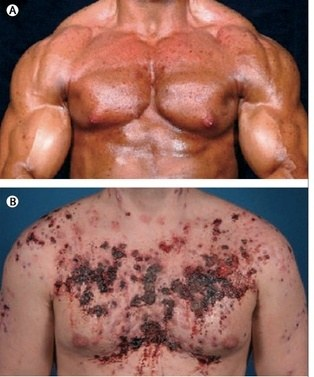What happens to the muscle gained from steroids after you