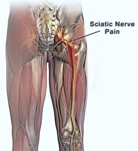 Does Climbing A Ladder Irritate Your Sciatica Nerve Quora