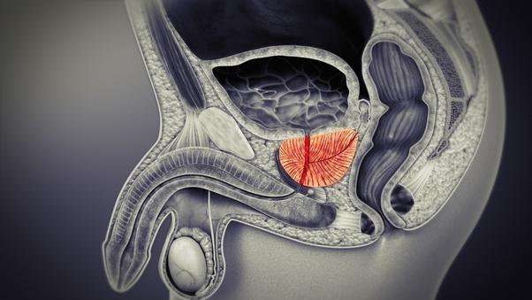dr ming prostatitis