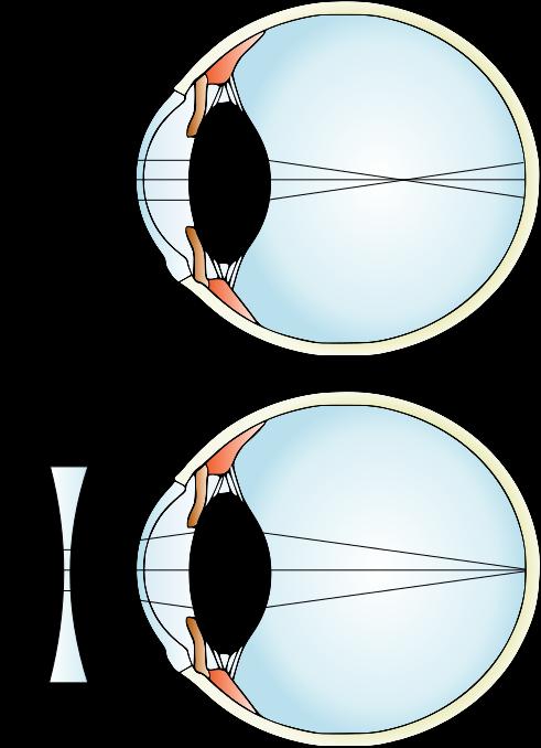 Does Astigmatism Change Glasses Needed