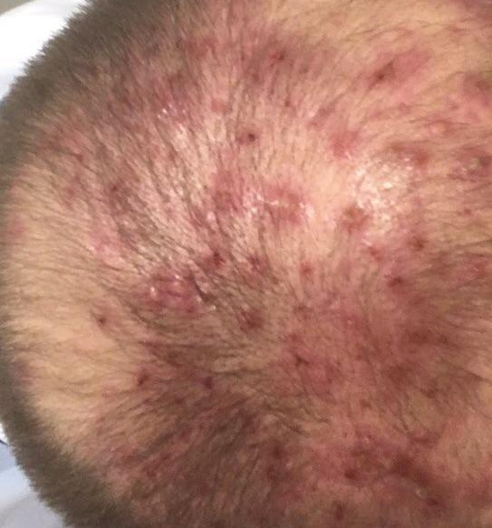 seborrhea capitis with folliculitis