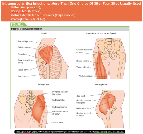 Buttock Injection Site: How To Minimise Pain After An Intramuscular Injection