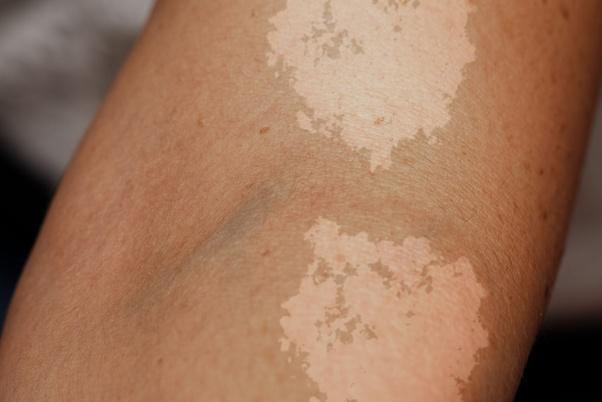 Is Each And Every White Spot Vitiligo Quora