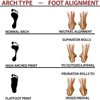 pain Flat foot