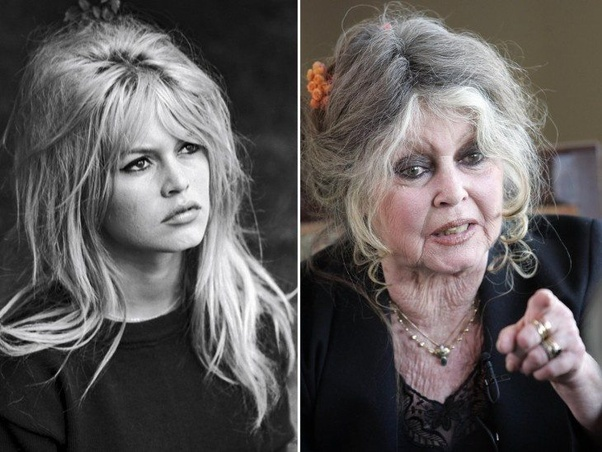 Which celebrities have aged the worst? - Quora