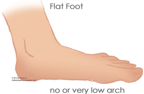 What are limitations of having flat feet? - Quora