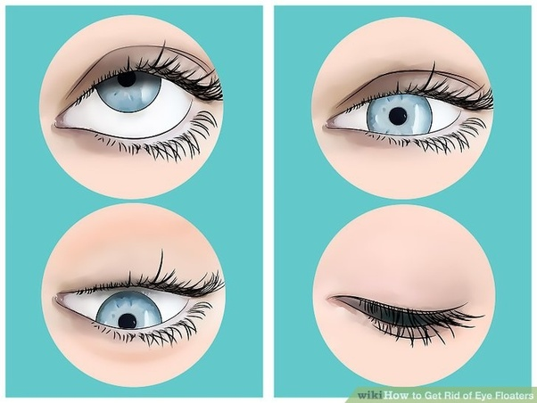 How to get rid of eye floaters without surgery - Quora