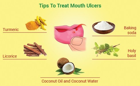 Treat Ulcer Pain Naturally