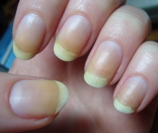 It Is Imperative To Check The Marks Of Nail Shines You Plan Use Guarantee That Items Utilize Are Protected