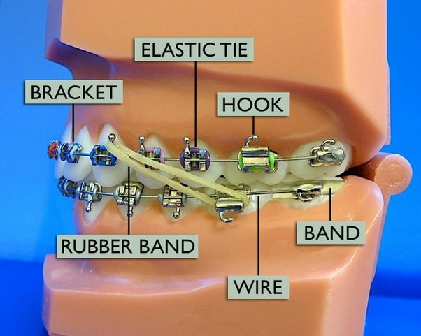 What Should I Do If The Brackets Of My Braces Are Carving