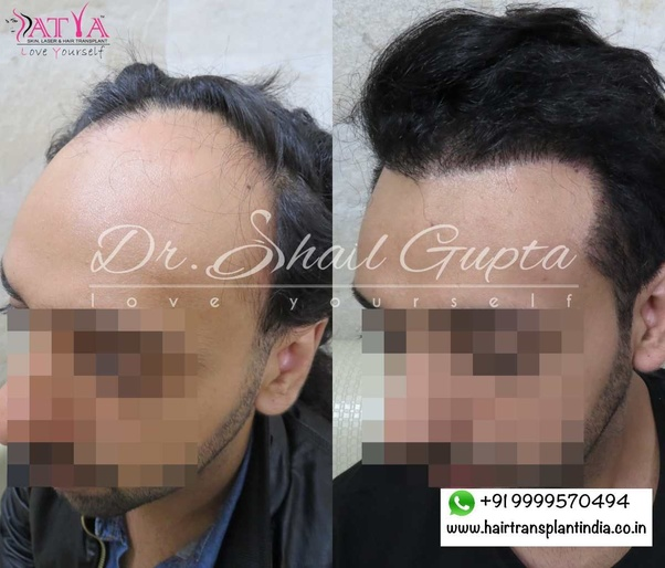 Is Hair Transplant A Good Option Quora