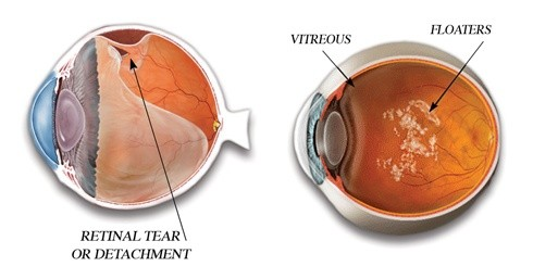 Is there a cure for eye floaters? - Quora