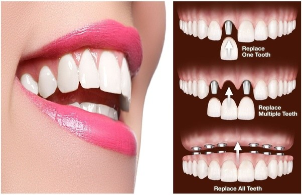 Is cosmetic dentistry helpful in smile designing quora the many dental procedures that we try to find the best cosmetic dentists for is teeth whitening because you can create a beautiful smile for yourself solutioingenieria Gallery