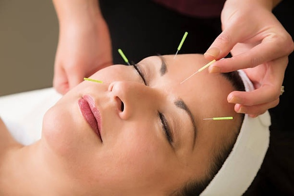 How long do acupuncture treatments take quora acupuncture can relieve the symptoms of your health issue strengthen your bodys resistance to disease and restore balance and normal function to your solutioingenieria