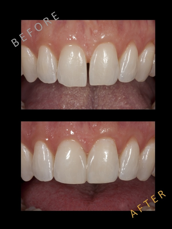 What is the best way to close gaps between teeth without