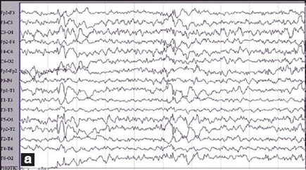Is EEG useful for distinguishing juvenile myoclonic epilepsy