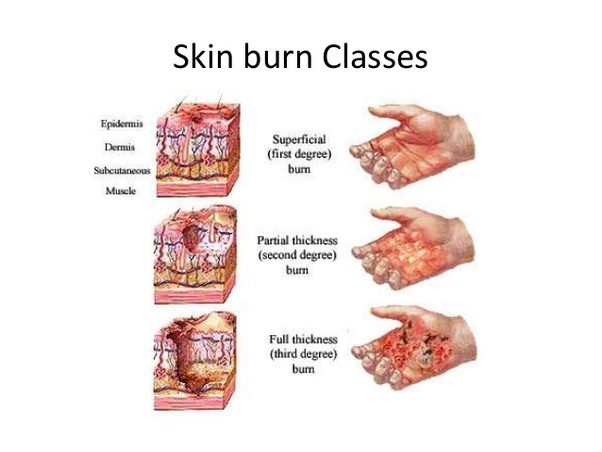 why steam burns your twice Second degree burns appear open, shiny and moist  ointment twice a day, and  more often if face becomes dry  your wound and promoting healing this.