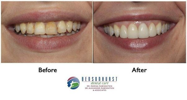 I have a small black line on my molar and it shows no signs of pain one procedure that we recommend in our office is zoom whitening it gets truly amazing results for our patients like this case of the month solutioingenieria Choice Image