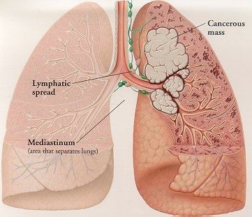 What is the treatment for lung cancer? - Quora