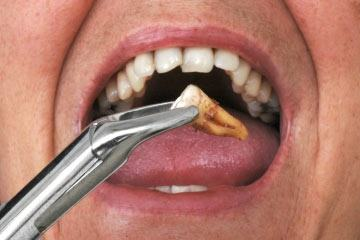 Tooth extraction and alcohol?
