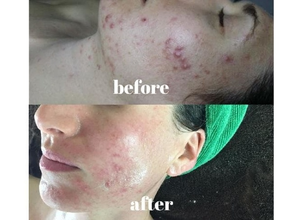 How to fade acne and black marks from my face - Quora