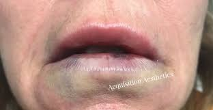 What should I do to get rid of a bruise on my lip? - Quora