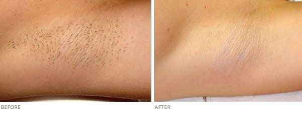 What Has Been Your Experience With Laser Hair Removal And It S