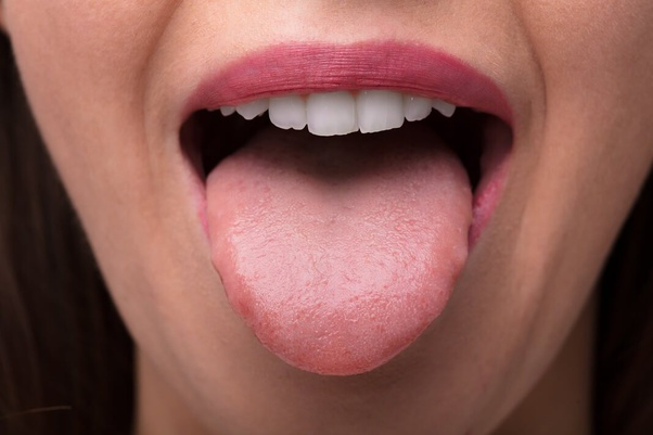 How to treat dry mouth at night - Quora