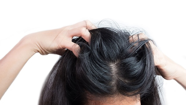 How to get rid of dandruff and itchy, paining scalp - Quora