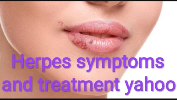 What is the best prescribed treatment of herpes? - Quora