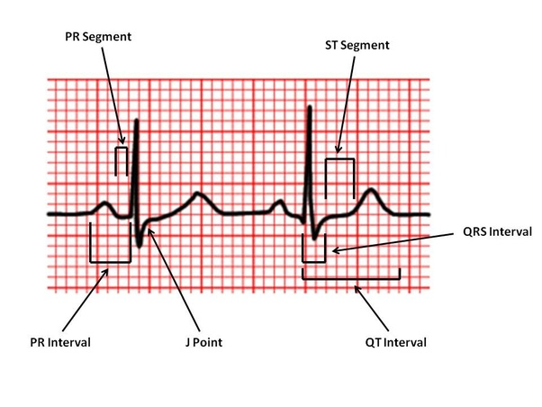 p-wave represents atrial depolarization, and qrs-complex collectively  represents ventricular depolarization (atrial re-polarization also  coincides with