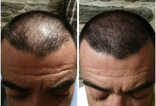 Are There Any Good Centres For Scalp Micro Pigmentation In