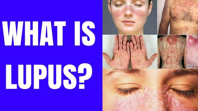What Is The Difference Between Other Types Of Lupus And Systemic