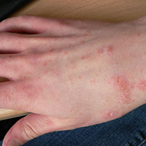 Can Chiggers Survive In Bedding