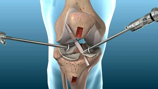 Image result for ACL Reconstruction Surgery