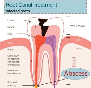 What is the difference between root canal and teeth ...