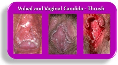 Macrobid and vaginal discharge