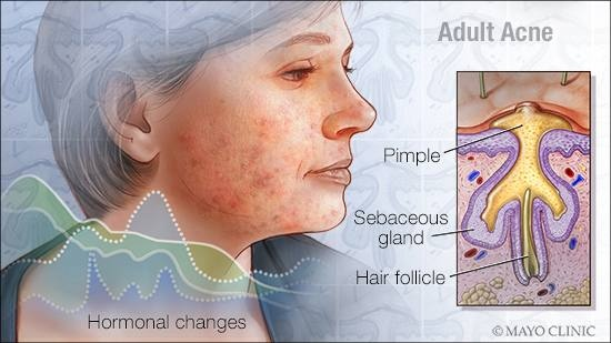 Can acne make your lymph nodes swell? - Quora
