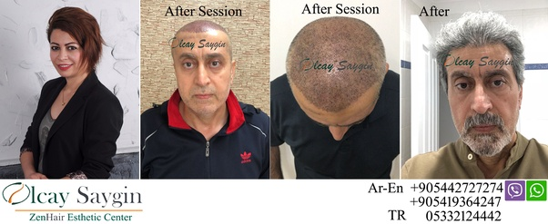Best Hair Transplant Doctors Dallas Tx Texas Restoration Specia