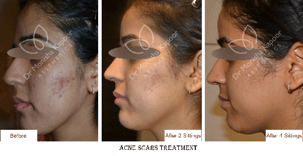 Which Is The Best Acne And Pimple Treatment Clinic Centre In New Delhi How Much Does It Cost For The Whole Course Quora