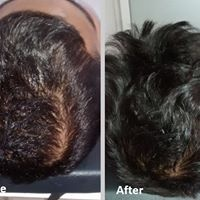 Is it true that homoeopathic treatment can reduce hair loss/baldness