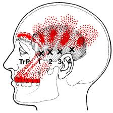 why does massaging one s temples soothe a migraine or headache quora